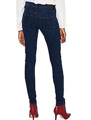 Esprit Casual - Pants denim - skinny jeans - blue dark wash - 3