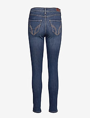 Hollister - High Rise Super Skinny - skinny jeans - dark destroy - 1