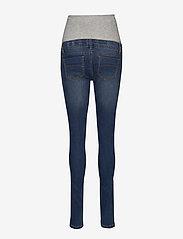 Mamalicious - MLLOLA SLIM BLUE JEANS - slim jeans - blue denim - 1