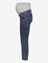 Mamalicious - MLVENTURA CROPPED SLIM JEANS - slim jeans - blue denim - 2