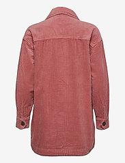 Nümph - NUCALAH OVERSHIRT - overshirts - ash rose - 2