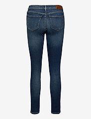 Tommy Hilfiger - COMO SKINNY RW DORAN - skinny jeans - doran - 1